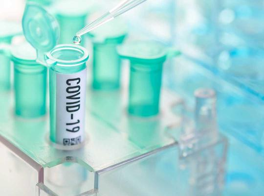 Coronavirus covid-19-test
